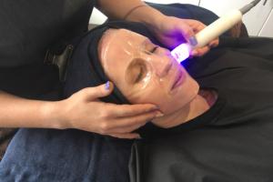 Vicci Caci Treatment at Benessere Bromsgrove